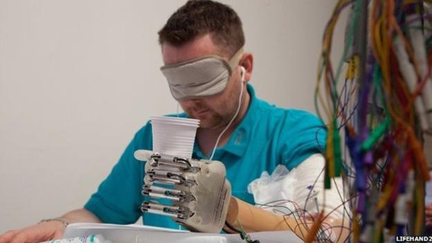 Pronin predavač postigao svjetski uspjeh-Bionička ruka vraća osjećaj dodira Medicina