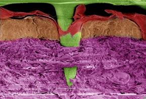 NanoVakcina Medicina Tehnologija