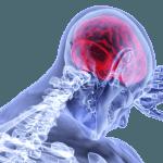 Oslobađanje od bola bez stvaranja zavisnosti