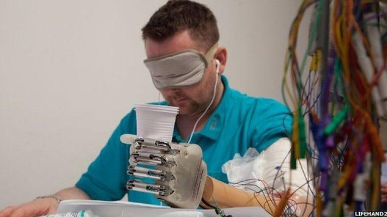 Bionička ruka